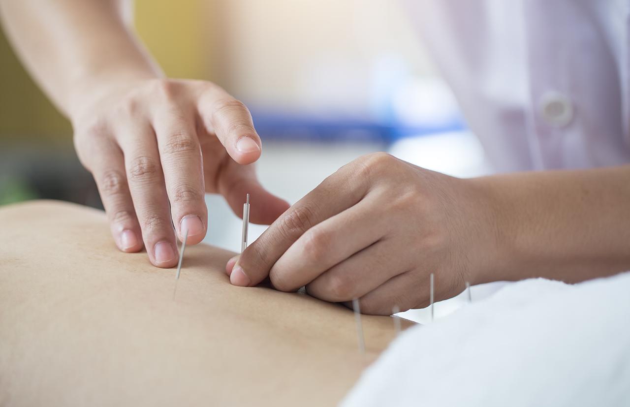 Acupuncture: In Depth | NCCIH